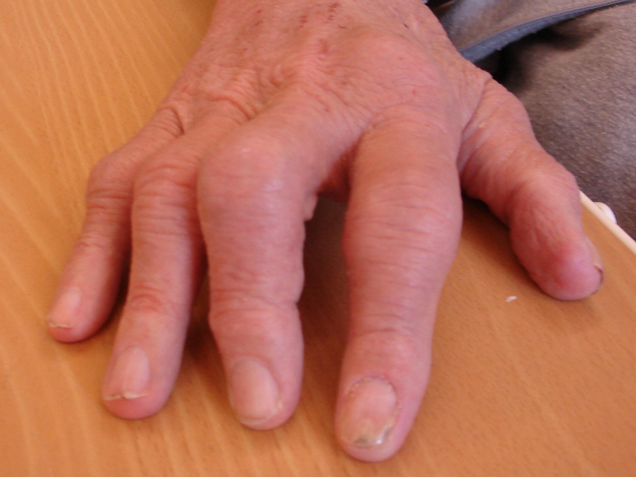 Gigtramte fingre.  Krogede fingre der er plaget af gigt